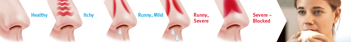 Blocked nose